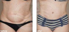 Abdominoplastia - Foto Antes de - Ocean Clinic Marbella