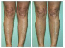 Aumento dei polpacci con protesi - Foto del prima - Dott. Sergio Delfino M.D.
