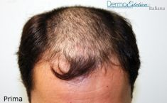Trapianto capelli - Foto del prima - Dott. Emilio Betti