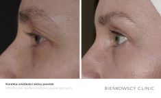 Non Surgical Lift - Photo before - Bieńkowscy Clinic®