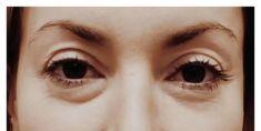 Odstranění kruhů pod očima - fotka před