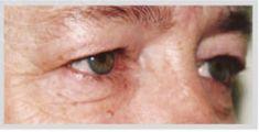 Operace očních víček (Blefaroplastika) - fotka před - MUDr. Otakar Lucák