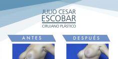 Liposucción - Foto Antes de - Dr. Julio César Escobar Fonseca