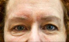 Mikrojehličkování, Microneedling (Skinroller - Dermaroller) - fotka před - Klinika estetické medicíny Petra Clinic