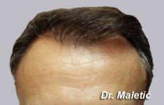 - Photo before - Dr. Maletić Ana