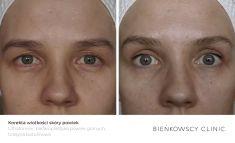 Eyelid surgery (Blepharoplasty) - Photo before - Dr n. med. Marcin Bieńkowski