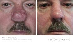 Mole removal - Photo before - Bieńkowscy Clinic®