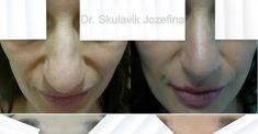 Operácia nosa (Rhinoplastika) - Fotka pred - Dr. med. Jozefina Skulavik