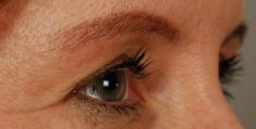 Operace očních víček (Blefaroplastika) - fotka před - MUDr. Lucie Kučerová