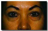 Cirugía de párpados (Blefaroplastia) - Foto Antes de - Dr. Jose Luis Valero S.