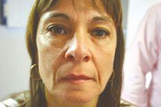 Kwas hialuronowy: Saypha, Restylane, Juvederm, Stylage - Zdjęcie przed - Dr n. med. Agnieszka Wąsik-Kuprianowicz