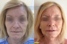 Lifting du visage - Cliché avant - Dr Mourad Zinelabidine