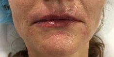Vyhlazení vrásek - Výplň vrásek kolem úst a refresh rtů