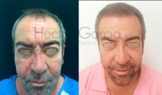 Dr. Hector Garcia - Foto Antes de - Dr. Hector Garcia