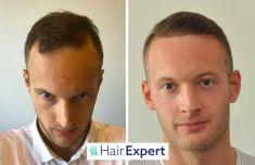 HairExpert - transplantace vlasů s doživotní zárukou - S ubývajícími vlasy jsem bojoval dlouho. Vyzkoušel jsem vše od šampónů po terapii plazmou. Skutečné výsledky a změnu přinesla až transplantace vlasů. Když jsem začal zjišťovat možnosti v ČR odradila mě přemrštěná cena. Následně jsem narazil na HairExpert a bylo rozhodnuto.  Adam P. - 32 let,   4.800 štěpů