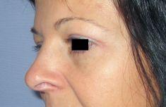 Operace očních víček (Blefaroplastika) - fotka před - LaserPlastic