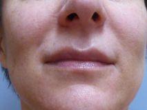 Lippenvergrößerung - Vorher Foto - MUDr. Kamila Šormová