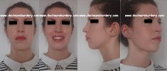 Rhinoplastie - femme de 30 ans profiloplastie par rhinoplastie, lipoaspiration cervicale et lipofilling du menton