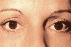 Augenlidstraffung - Vorher Foto - Nofretete Klinik GmbH & Co. KG