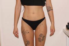 Alternativa liposukce - neinvazivní odstranění tuku a celulitidy - Bezbolestná liposukce, hubnutí boků a tvarování pasu po jedné procedúře, úbytek 2 cm, Beauty studio Dana, Praha 9, Vyzkoušejte a výsledek uvidíte hned.