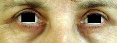 Operace očních víček (Blefaroplastika) - fotka před - MUDr. Eva Dřevínková