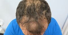 Hair Transplant - Photo before - Dr. Maletić Ana