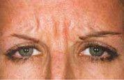 Odstranění vrásek pomocí botulotoxinu - fotka před - Klinika Laser Esthetic