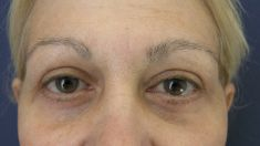 Eyelid surgery (Blepharoplasty) - Photo before - MUDr. Peter Ondrejka - MEDICOM Clinic