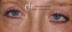 Plastyka powiek dolnych - Zdjęcie przed - dr n. med. Dariusz Rychlik
