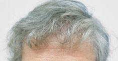 Haartransplantation - Vorher Foto - Dr. Maletić Ana