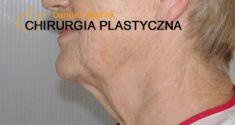 Lifting twarzy Silhouette Soft - Zdjęcie przed - dr n. med. Dariusz Rychlik