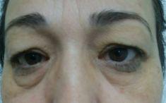 Blépharoplastie - Cliché avant - Dr Karim Bouzid