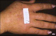 Laserové odstranění tetování a pigmentací - fotka před - Lékařské laserové centrum