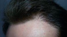Transplantace vlasů - Foto před a rok po zákroku