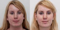 Odstranění jizev po akné - fotka před - MUDr. Katarína Třísková - MEDICOM Clinic