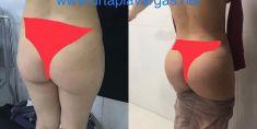 Aumento y Modelado de Glúteos - Cirugía de glúteos con prótesis. Dr. Ignacio Tapia, Vaser Lipo Centrum. Bolivia Sucre.
