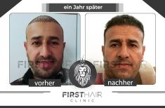 First Hair Clinic Haartransplantation - Vorher Foto - First Hair Clinic Haartransplantation