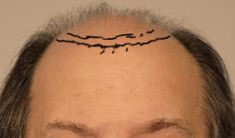 Hair Transplant - There are two basic methods of hair transplantation: