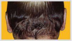 Operace uší (Otoplastika) - fotka před - MUDr. Otakar Lucák