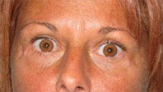 Eyelid surgery (Blepharoplasty) - Photo before - Artisan Cosmetic Surgery