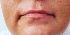 Lip augmentation - cheiloplasty - Photo before - Dr.med. Rolf Bartsch