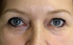 Eyelid surgery (Blepharoplasty) - Photo before - dr. n. med. Kamil Pietrasik