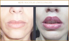 Dr Nicolas Zwillinger - Cliché avant - Dr Nicolas Zwillinger