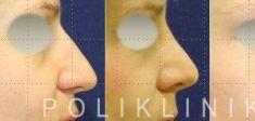 Rhinoplasty (Nose Job) - Photo before - Prof. dr. med. Mislav Gjurić