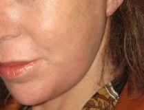 Dra. Teresa Chomali Kokaly (Especialista Acreditado) MD, FACS - Foto Antes de - Dra. Teresa Chomali Kokaly (Especialista Acreditado) MD, FACS