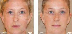 Cirugía de la nariz (Rinoplastia) - Nasal Tip, Bridge & Dorsum and Nasal Bone