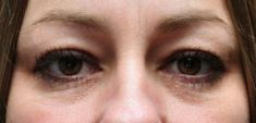 Korekcja powiek (Blepharoplastyka) - Zdjęcie przed - dr. n. med. Kamil Pietrasik