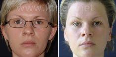 Operacija uši (otoplastika) - Fotografija prije - Poliklinika za estetsku kirurgiju Dr. Tončić