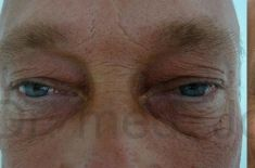 Operácia očných viečok (Blepharoplastika) - Fotka pred - Dr. med. Jozefina Skulavik