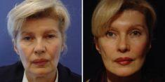Lifting lica (ritidektomija), SMAS face lifting - Fotografija prije